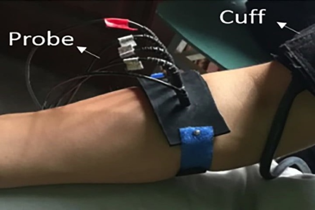 A Lifesaving Wearable By Army Medical University and China Academy of Engineering Physics could Diagnose Strokes Accurately